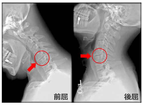 頸椎のレントゲン写真